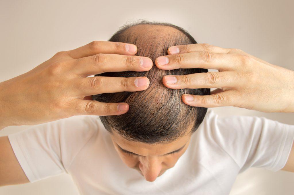Exemple d'un besoin de greffe de cheveux